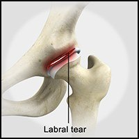 Labral Tears of the Hip